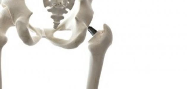 ألم عظام الحوض