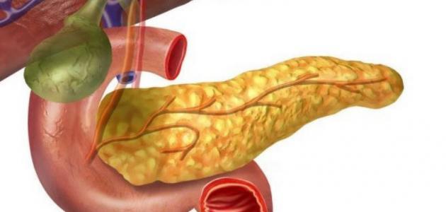 اعراض مرض البنكرياس