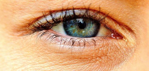 احمرار حول العين