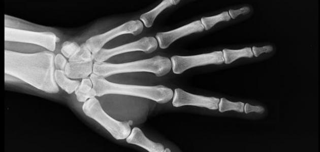 سرطان العظام وأعراضه