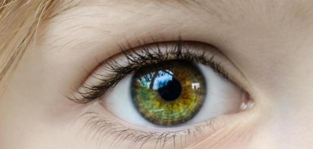 احمرار بياض العين