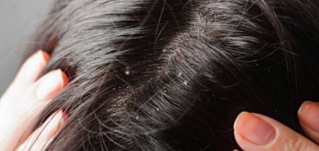 ما هو علاج القمل والصيبان