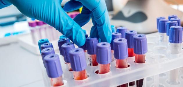 علاج نقص صفائح الدم