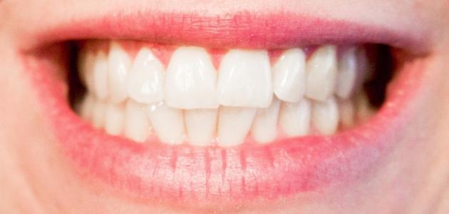 علاج التهاب عصب الأسنان بالأعشاب