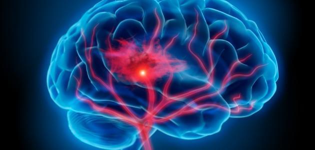 التهاب الدماغ الفيروسي