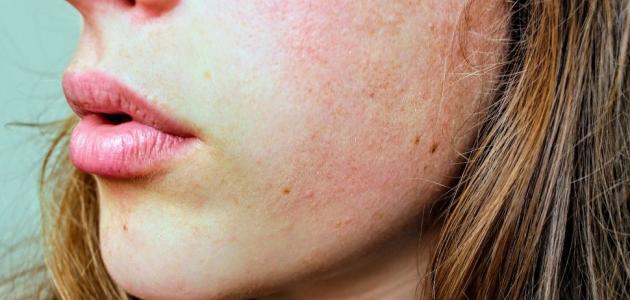 أعراض قرحة الجلد