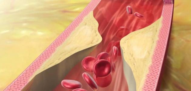 اسباب ارتفاع الكوليسترول