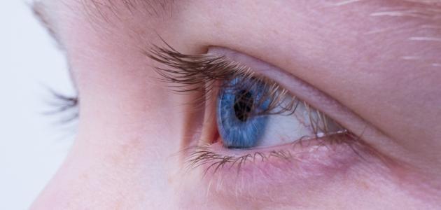 التهاب الملتحمة الفيروسي بالعين