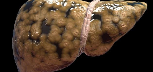 مرض تشمع الكبد