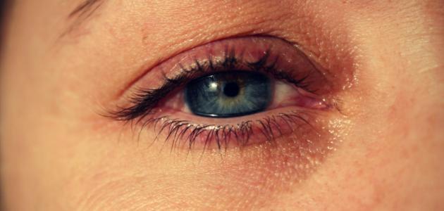 أسباب زغللة العين