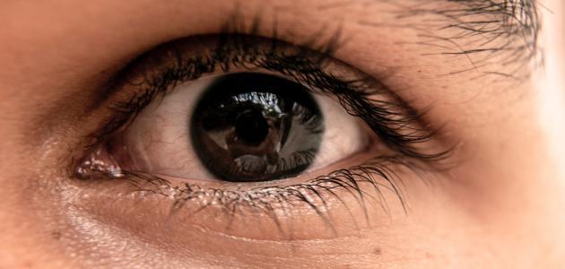 ابحث عن كيس رخيص الم في جفن العين من الداخل Comertinsaat Com