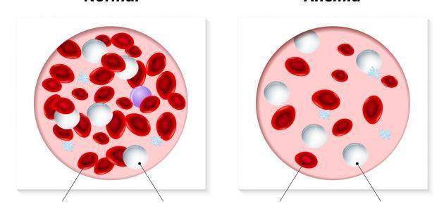 أسباب فقر الدم