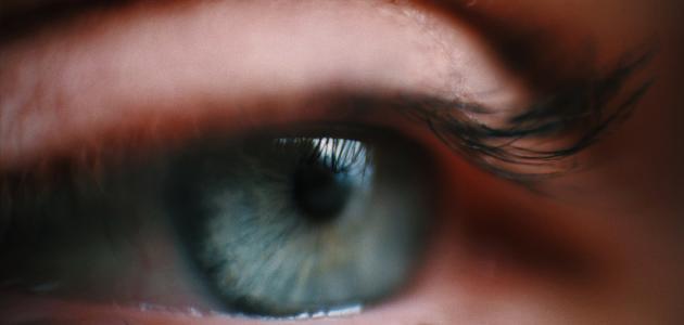 أفضل علاج لظفرة العين