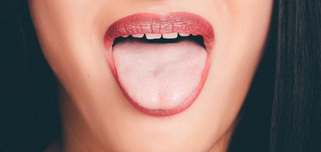 أفضل علاج لتقرحات الفم واللسان