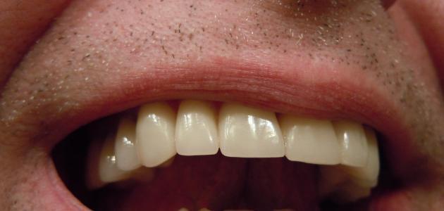 آثار بنج الاسنان