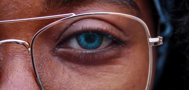 التهاب العين من العدسات وعلاجه