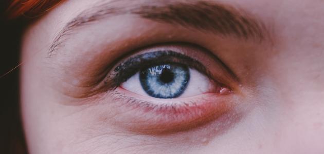 أنواع قطرة العين