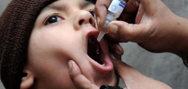 اعراض شلل الأطفال