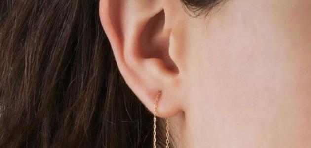 احتقان الأذن الوسطى