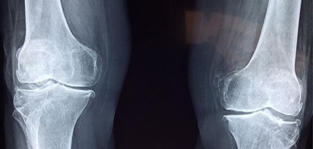 احتكاك عظام الركبة