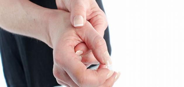 تورم مفصل الإصبع