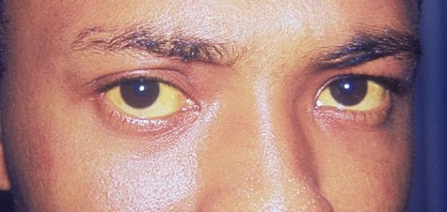 اعراض مرض الكبد الوبائي