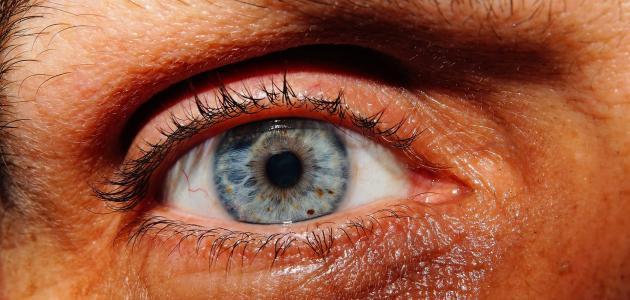 أنواع حساسية العين