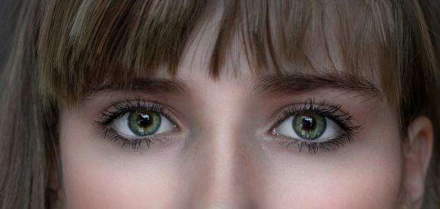احمرار العين الدائم