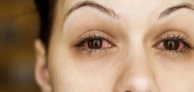 أمراض العيون وأعراضها