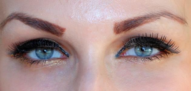 الماء الزرقاء في العين وعلاجها