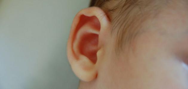 اعراض هواء الاذن
