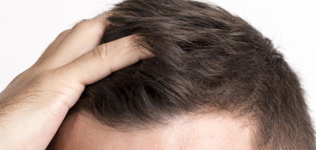 سبب تساقط الشعر عند الرجال