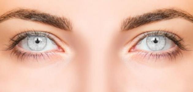 المحافظة على العيون