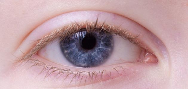 إنتفاخ جفن العين العلوي