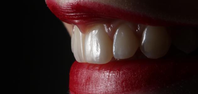 سبب ألم الأسنان بعد الحشو