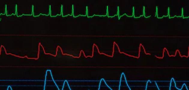 فحوصات اضطراب نبضات القلب