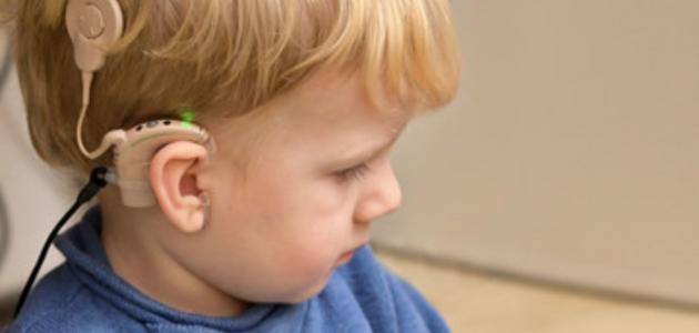 ما هي زراعة قوقعة الأذن؟