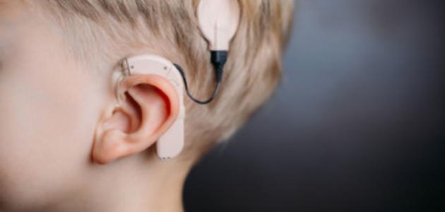 ما أسباب زرع جذع الدماغ السمعي؟