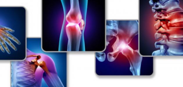 ما هي أسباب التهاب المفاصل الصدفي؟