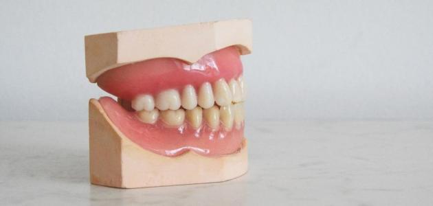 تصدع الأسنان: ما سببه وعلاجه؟
