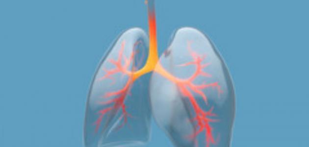 فقاعات في الرئة: ما سببها؟ وكيف يمكن علاجها؟