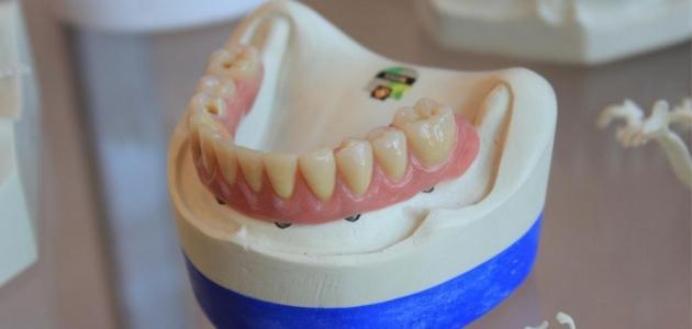 5 نصائح للتخلص من تكلس الأسنان