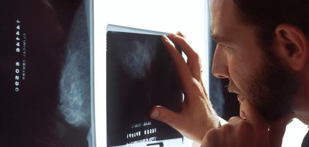 كيف تمنع عودة السرطان؟