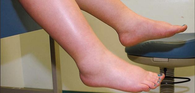 الام القدم اسبابها وعلاجها