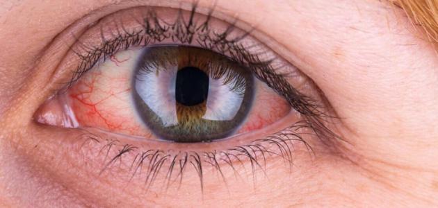 سرطان العين