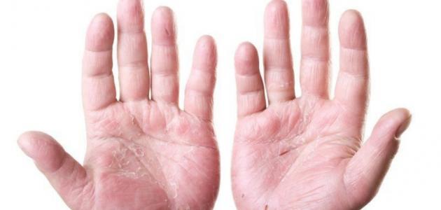 ما هي امراض الجلد
