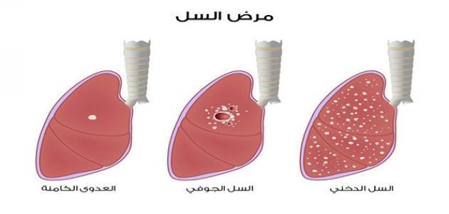 ما هي انواع امراض الرئة
