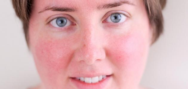 علاج تصبغات الوجه