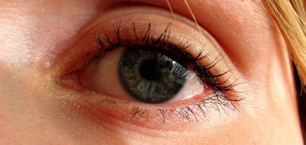 علاج رفة العين