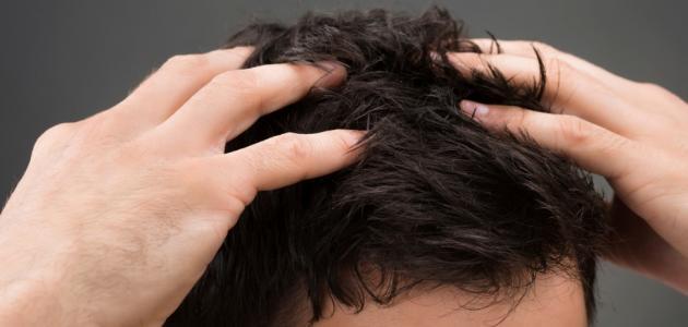 علاج قشرة الشعر نهائياً